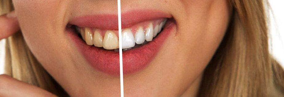 How to naturally whiten teeth at home: Home Remedies